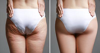 Voher-Nacher-Bild; Po einer Frau in weißer Unterhose. Voher: Massive Cellulite am Po und im Bereich unter dem Po. Nachher-Bild: Die Haut ist wieder schön, glatt und prall. Africa Studio/Shutterstock.com