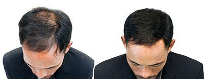 Bild des Oberkopfes eines Mannes, der sich die Haare mit einem Kamm kämmt. - chairoij/Shutterstock.com